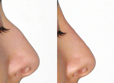 Rhinoplastie médicale acide hyaluronique mellul lille