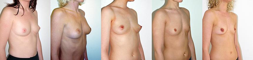bons cas pour l'augmentation mammaire par prothèses