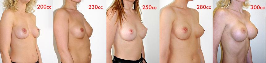 divers volumes de prothèses mammaires